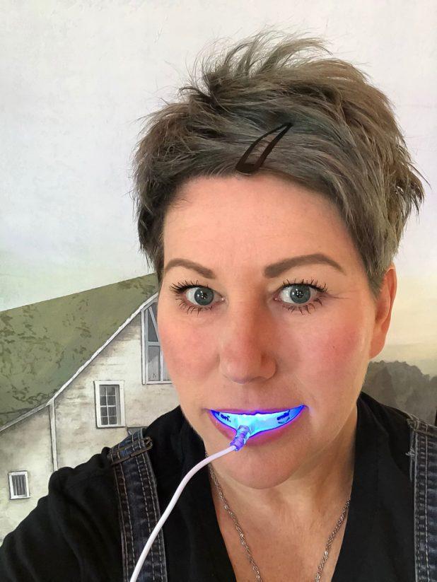 Testing Smile Direct Teeth Whitening Kit