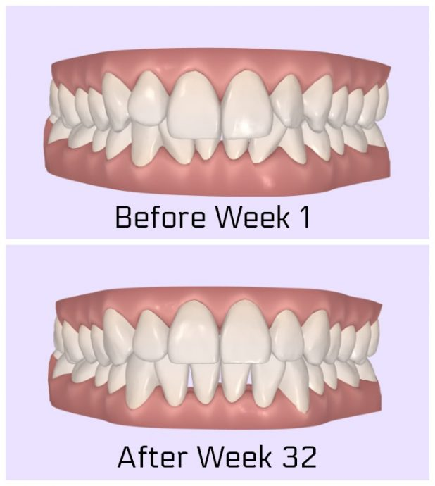 Smile Direct Before and After Invisible Braces Computer Generated Results